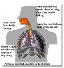 Malignant mesothelioma, lung cancer, asbestosis, pleural plaques