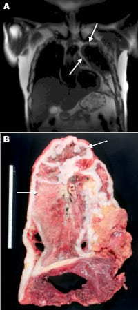 Pleural mesothelioma as seen by radiology and pathology